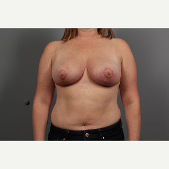 44 year old woman treated with Breast Lift after 2976640