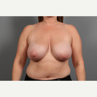 44 year old woman treated with Breast Lift before 2976640