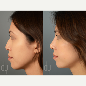 Asian Rhinoplasty with DCF