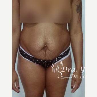 35-44 year old woman treated with Tummy Tuck before 3825647
