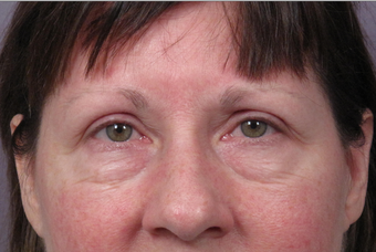 Eyelid Surgery before 302502