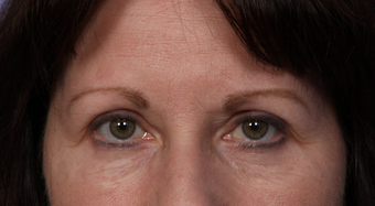 Eyelid Surgery after 302502