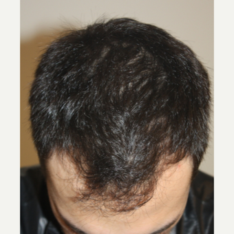 35-44 year old man treated with FUE Hair Transplant before 3749356