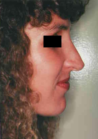 Revision Rhinoplasty before 665079