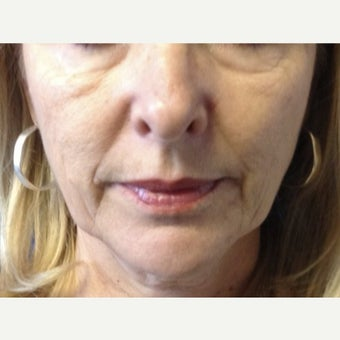 55-64 year old woman treated with Juvederm before 1972371