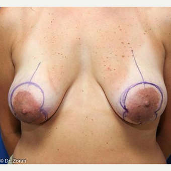 25-34 year old woman treated with Breast Lift with Implants before 3032942