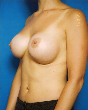 Breast Augmentation Revision Case  before 731283