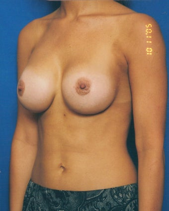 Breast Augmentation Revision Case  after 731283
