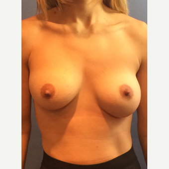 25-34 year old woman treated with Breast Augmentation before 3124092