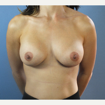 25-34 year old woman treated with Breast Augmentation after 3124092