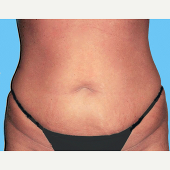Liposuction before 3810409