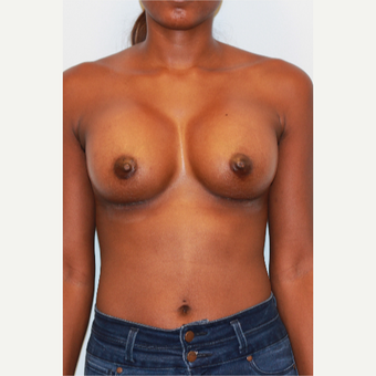 18-24 year old woman treated with Breast Augmentation after 3026887