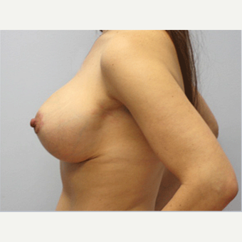 25-34 year old woman treated with Breast Lift after 3803492