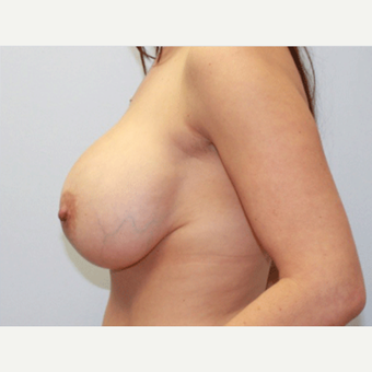 25-34 year old woman treated with Breast Lift before 3803492