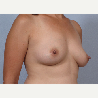 38 year old; drooping breasts after breast feeding.  Treated with RF-assisted scarless breast lift before 3452410