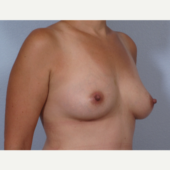 38 year old; drooping breasts after breast feeding.  Treated with RF-assisted scarless breast lift after 3452410
