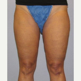 45-54 year old woman treated with CoolSculpting after 3762706