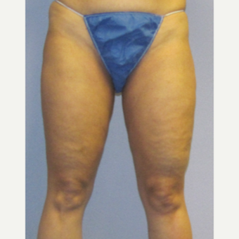 45-54 year old woman treated with CoolSculpting before 3762706