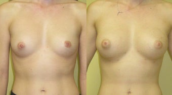 Breast Augmentation With Natural Fat before 459922