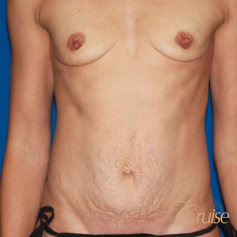 Mother of five underwent a standard tummy tuck before 3584892