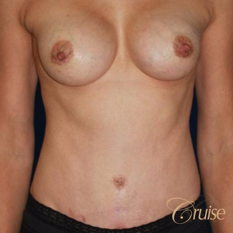 Mother of five underwent a standard tummy tuck after 3584892