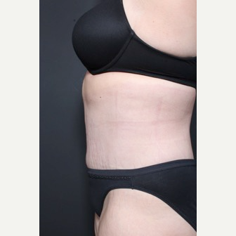 25-34 year old woman treated with Tummy Tuck after 3844700