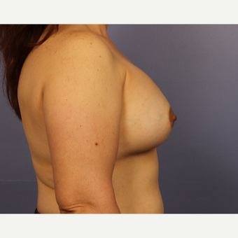 45-54 year old woman treated with Breast Augmentation after 3671547