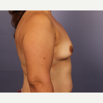 45-54 year old woman treated with Breast Augmentation before 3671547