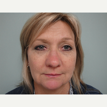 45-54 year old woman treated with Eyelid Surgery after 3823327