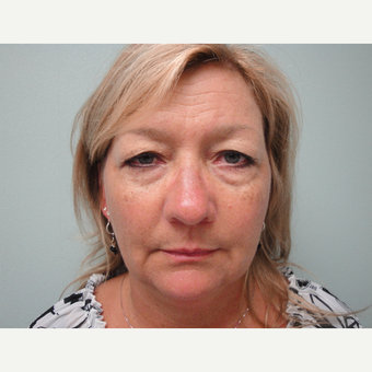 45-54 year old woman treated with Eyelid Surgery before 3823327
