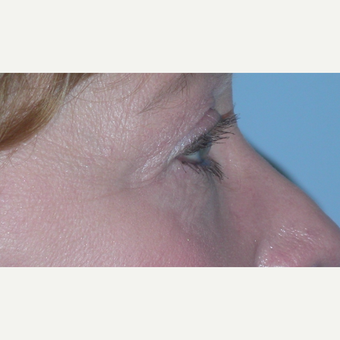 45-54 year old woman treated with Eyelid Surgery after 3074607