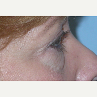 45-54 year old woman treated with Eyelid Surgery before 3074607