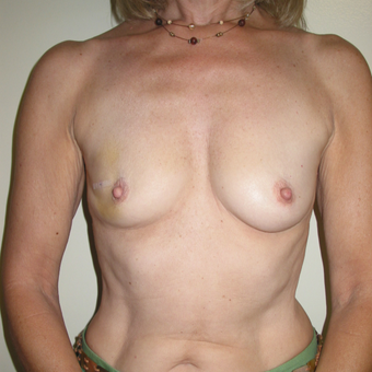 45-54 year old woman treated with Breast Reconstruction before 3442195