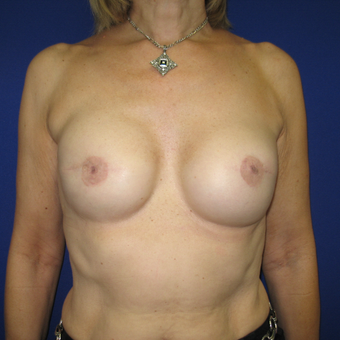 45-54 year old woman treated with Breast Reconstruction after 3442195
