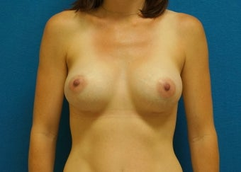 32 Year Old Female Breast Augmentation - 320cc Anatomic Shaped Silicone Gel Implants after 1206630