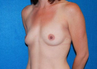32 Year Old Female Breast Augmentation - 320cc Anatomic Shaped Silicone Gel Implants 1206630