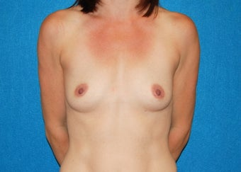 32 Year Old Female Breast Augmentation - 320cc Anatomic Shaped Silicone Gel Implants before 1206630