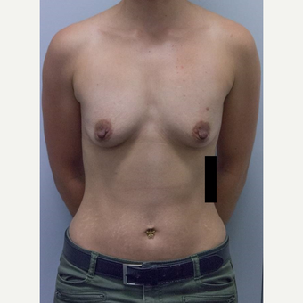 25-34 year old woman treated with Breast Augmentation before 3177013