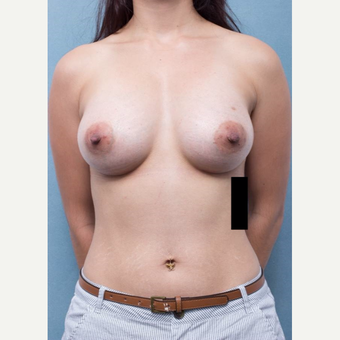 25-34 year old woman treated with Breast Augmentation after 3177013
