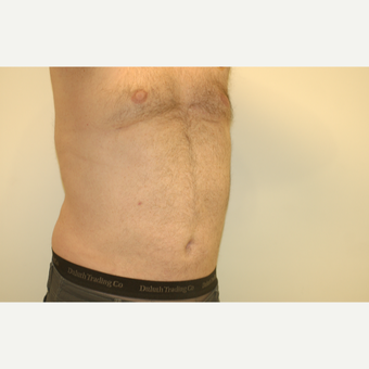 55-64 year old man treated with Smart Lipo after 3300111