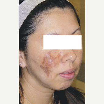 43 year old woman treated with Pico Laser for Hyperpigmentation before 3056308