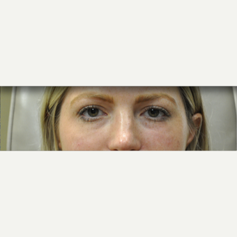 25-34 year old woman treated with Restylane after 3182059