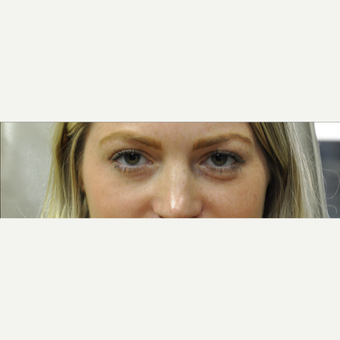 25-34 year old woman treated with Restylane before 3182059