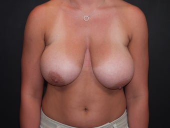Breast Reduction before 340537