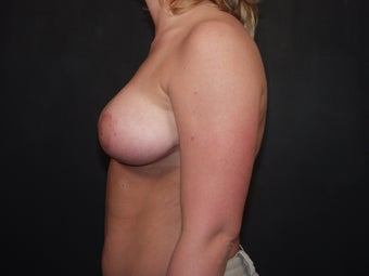 Breast Reduction 340537