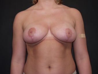 Breast Reduction after 340537