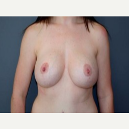25-34 year old woman treated with Breast Lift after 3339109