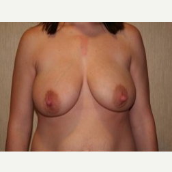 25-34 year old woman treated with Breast Lift before 3339109