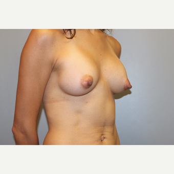 25-34 year old woman treated with Breast Augmentation after 3569788