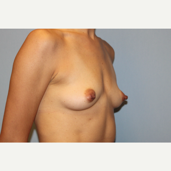 25-34 year old woman treated with Breast Augmentation before 3569788